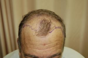 גבר מקריח לפני השתלת שיער
