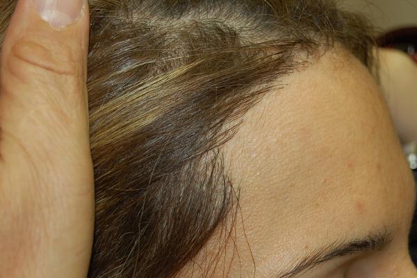 השתלת שיער טבעית לחלוטין לאישה.