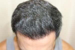 שיער בריא ועשיר אחרי השתלה
